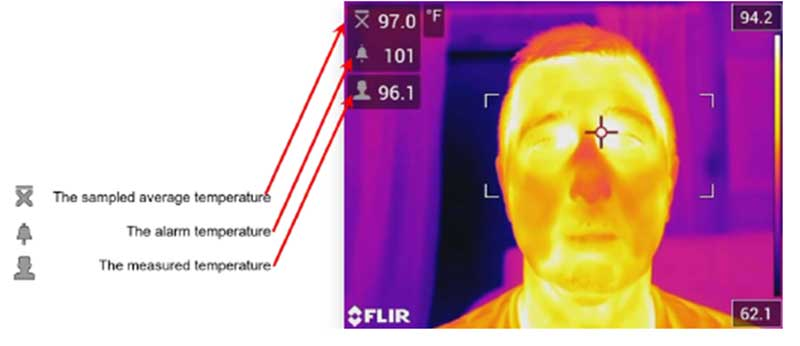 Thermal image of body temperature with explanation