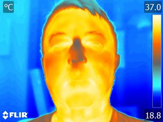 Thermal image of body temperature